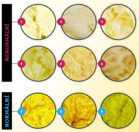 přehled všech možných barev stolice kojence